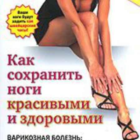 Купить Как сохранить ноги красивыми и здоровыми: Варикозная болезнь - профилактика и лечение