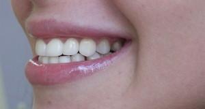 Что такое циркониевые коронки для зубов